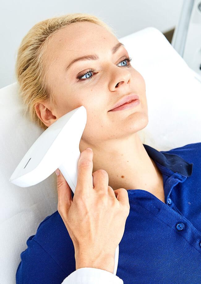 Aknenarben entfernen durch Laserbehandlung, Aknenarben behandeln Lasertherapie Linz, Aknenarben lasern, Akne behandeln, Akne Behandlung Linz Kollerbeauty