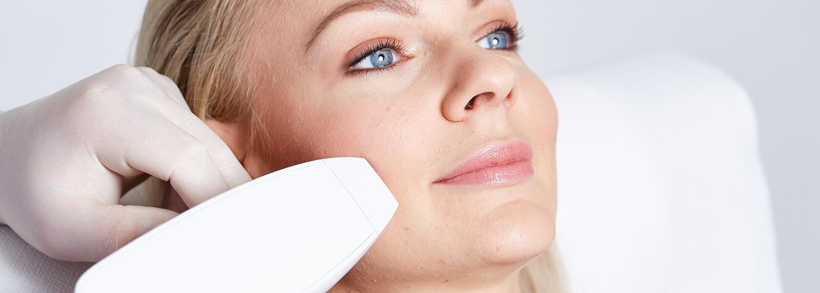 Aknenarben entfernen, Aknenarben behandeln, Aknenarben lasern, Akne behandeln, Akne Behandlung, Aknenarben entfernen Linz Kollerbeauty