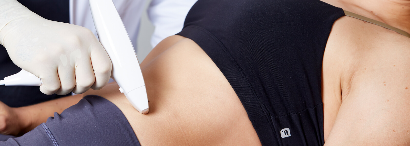 Dehnungsstreifen entfernen, Schwangerschaftsstreifen entfernen in Linz