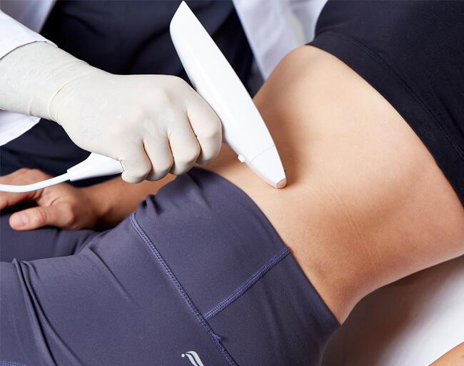 Dehnungsstreifen entfernen mittels Laser, Lasertherapie Dehnungsstreifen entfernen. Laser Schwangerschaftsstreifen entfernen Linz