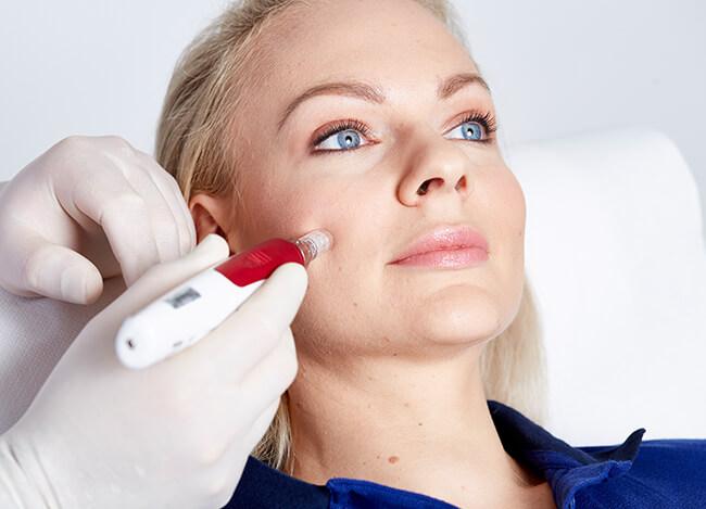 Faltenbehandlung durch Microneedling, Microneedling Behandlung Anti Falten Bild Linz