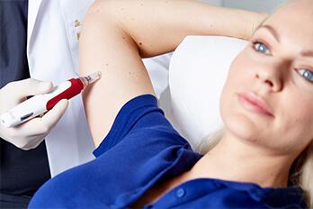 Kollerbeauty Behandlung - Dehnungsstreifen entfernen mit Laser und Microneedling in Linz.