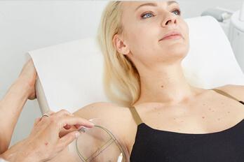 Kollerbeauty Behandlung MiraDry Linz