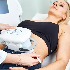 Kryolipolyse Linz. Fettabsaugung ohne Op, Liposuction ohne Operation.