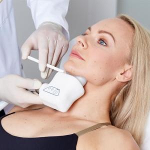 Kryolipolyse Kinn Behandlung Linz ➤ Kryolipolyse Behandlung Kinn Linz