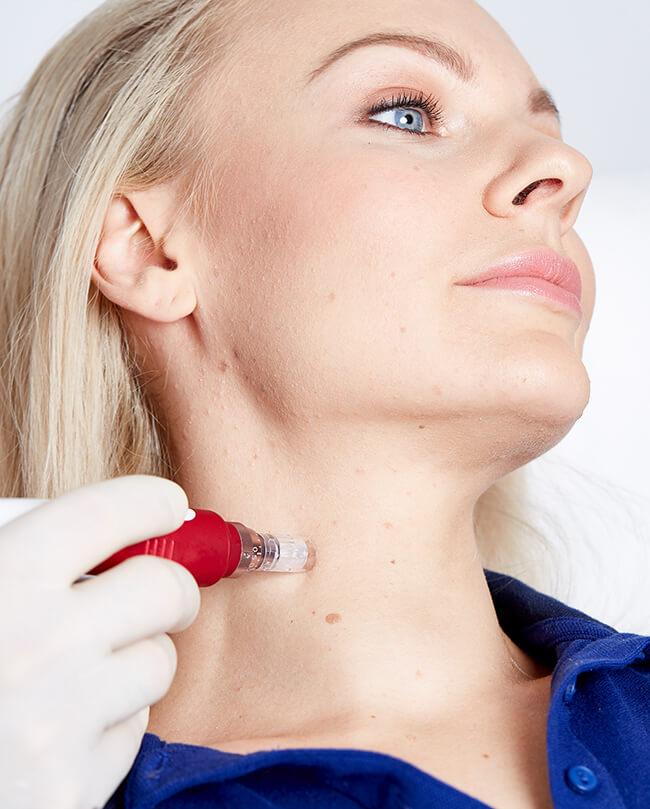 Microneedling Behandlung Linz, Faktoren Microneedling