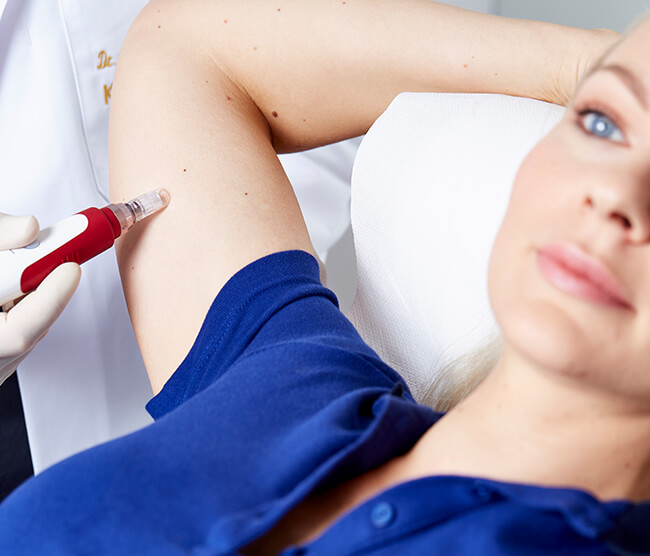 Microneedling Behandlung Linz, Wirkung Microneedling