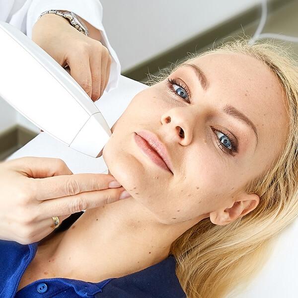 Falten lasern im Gesicht. Falten weglasern in Linz Stadt - Laser Faltenkorrektur zur Gesichtsverjüngung für eine jünger aussehende und glattere Haut!