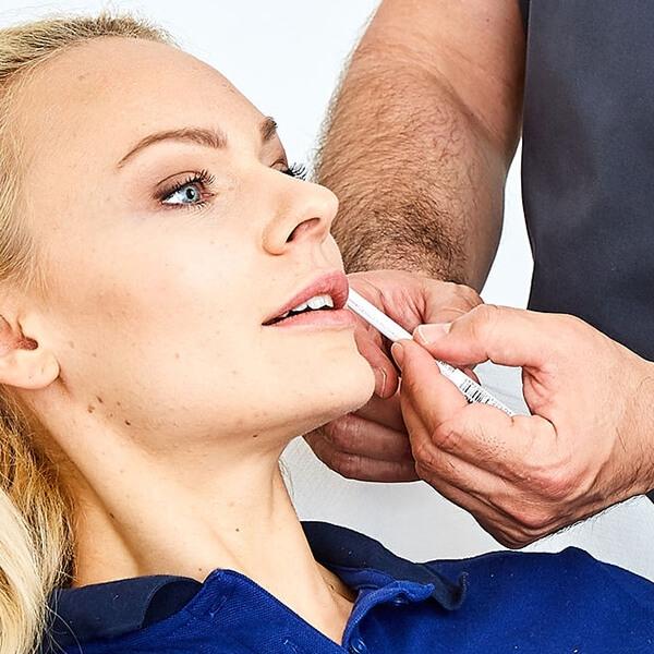 Lippen vergrößern. Lippenvergrößerung, Lippen aufspritzen bei Kollerbeauty in Linz