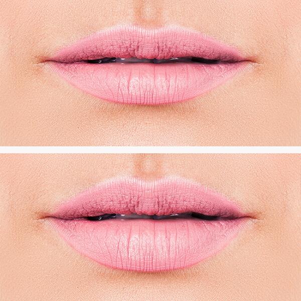 Lippen vergrößern in Linz bei Kollerplast, Vorher Nachher Bild exemplarische Darstellung Dr. Koller