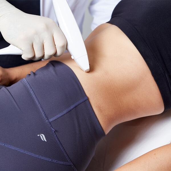 Schwangerschaftsstreifen entfernen und Wachstumsstreifen weglasern. Dehnungsstreifen korrigieren mit Laser, Stoßwelle und Microneedling Behandlung in Linz