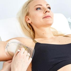 Schweißdrüsen entfernen in Linz gegen Schwitzen, gegen Schweißgeruch, Schweißausbruch, gegen Hyperhidrose. Schweißdrüsen entfernen Kollerbeauty Linz