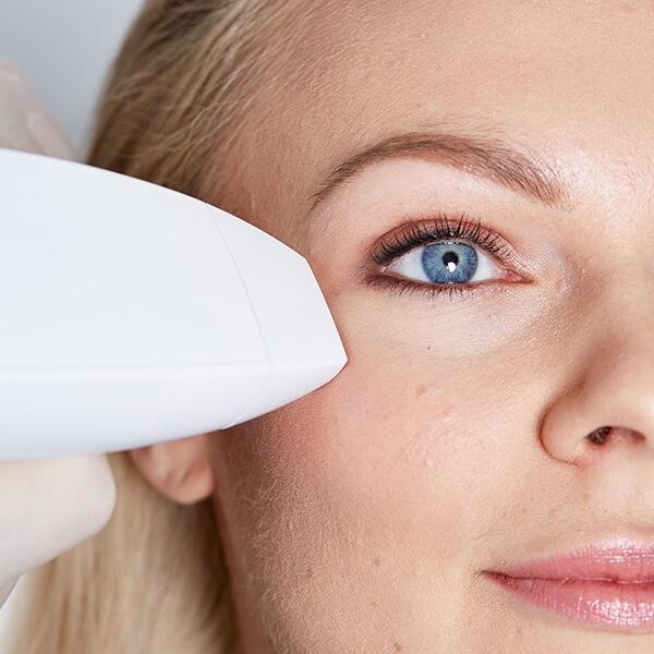 Augenfalten lasern in Linz im Gesicht. Augenfalten weglasern in Linz