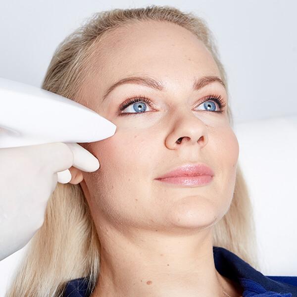 Augenfalten lasern in Linz im Gesicht. Augen Falten weglasern für ein jüngeres aussehen und glattere Haut. Gesichtsfalten weglasern. Augenfalten lasern Linz.