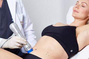Behandlung Cellulite Behandlung mit Stoßwellentherapie. Bindegewebe Stärkung mittels medizinischer Stoßwelle für hervorragende Ergebnisse gegen Orangenhaut.