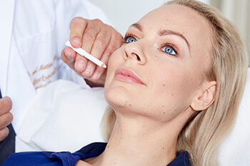 Behandlung Faltenbehandlung Linz. Faltenbehandlungen mit Filler, Hyaluronsäure, Botox, Lasertherapie, Microneedling, Vampir Lifting, uvm. Minimal-invasive Gesichtsverjüngung ohne Operation / ohne Skalpell.