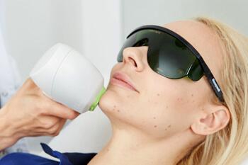 Behandlung Laser Haarentfernung zur dauerhaften Haarentfernung. Behandlung mit dem medizinischen IPL Laser zur nachhaltigen Haarentfernung am Körper.