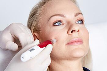 Behandlung Microneedling Linz. Die Microneedling Behandlung erfolgt mittel high speed Punktion der betroffenen Hautstelle. Methode zur Verjüngung / Straffung der Haut an Gesicht, Hals Dekolletè, etc.