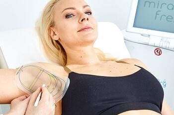 Behandlung miraDry Linz. MiraDry gegen übermäßiges Achselschwitzen. Die dauerhafte Lösung gegen Achselschweiß. Effektive und innovative Behandlung / Therapie auf Basis von Mikrowellen.