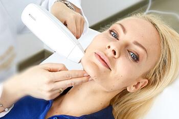 Behandlung Aknenarben entfernen / korrigieren mittels medizinischem, high tech Fraxel Laser. Aknenarben können effektiv und hautschonend entfernt bzw. stark verbessert werden.