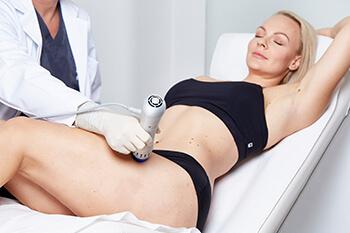Behandlung Stoßwellentherapie in Linz. Stoßwellentherapie zur Behandlung von Schwangerschafts,- / Dehnungsstreifen, Cellulite, uvm. Die Stoßwellentherapie beeinflusst das Bindegewebe und die Kollagen Strukturen positiv.