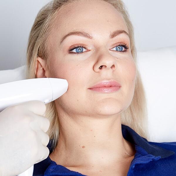Falten weglasern effektiv und dauerhaft. Falten lasern für jüngeres aussehen und glattere Haut. Faltenkorrektur mittels Fraxel Laser in Linz.