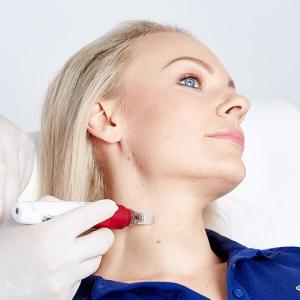 Halsstraffung Microneedling in Linz. Microneedling zur Halsstraffung. Straffere Haut durch Halslifting. Behandlung Verjüngung durch Microneedling Linz!