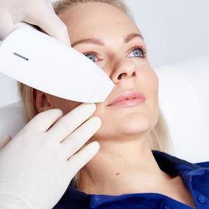 Lippenfalten lasern, Lippenfalten entfernen in Linz für ein jüngeres Aussehen.