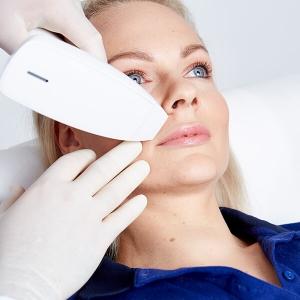 Narben lasern in Linz. Narbenkorrektur mit medizinischem Fraxel Laser. Narben weglasern für ein schöneres Erscheinungsbild der Haut. Narben lasern Linz!