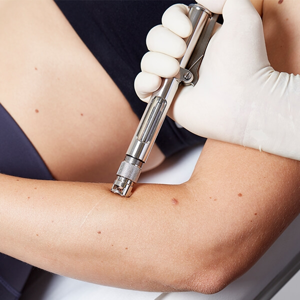 Narbenbehandlung Linz von hypertrophen Narben, verdickte, kordelförmige Narben oder Verbrennungen, Verletzung, Operationen mit Laser und Thermo-Jet Behandlung