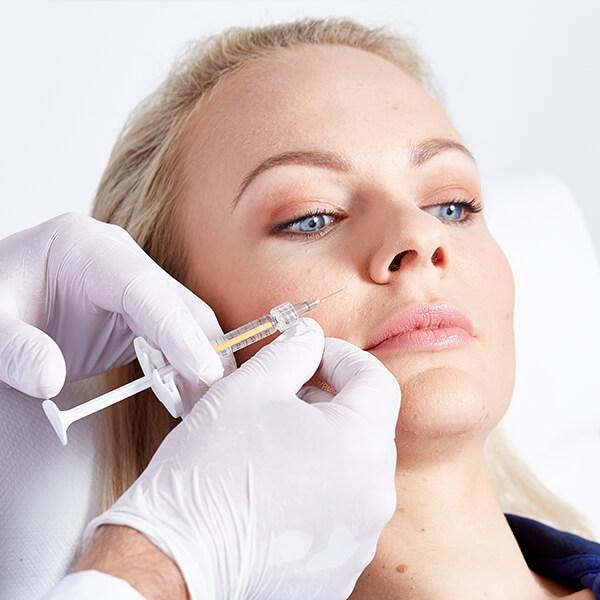 Nasolabialfalte unterspritzen in Linz. Nasolabialfalte entfernen zur Gesichtsverjüngung. Nasenlippenfurche entfernen. Gesichtsfalten Unterspritzung Linz.