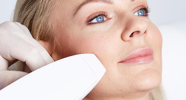 Aknenarben entfernen 4020 Linz. Akne Narben behandeln, Akne Narben entfernen und weglasern. Verbesserung des Hautbildes durch Lasertherapie bei Akne