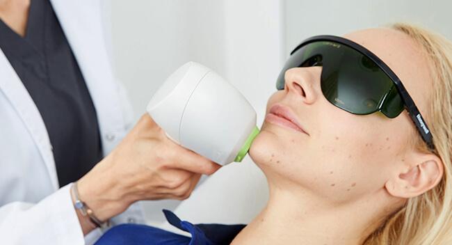 Dauerhafte Haarentfernung 4020 Linz, Haare dauerhaft mittels Laser entfernen in Linz, bei Dr. Koller - Kollerbeauty - Haare lasern, weglasern
