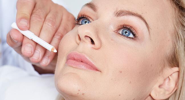 Faltenbehandlung Linz Dr. Koller. Hyaluronsäure Spritze, Botox Injektionen, Faltenunterspritzungen mit Filler in 4020 Linz