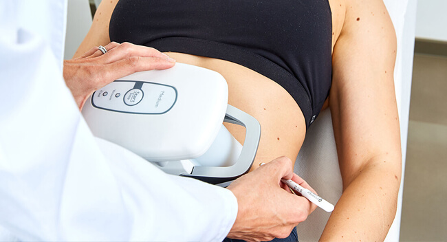 Kryotherapie Linz Dr. med. Matthias Koller. Fettabsaugung ohne OP durch Kälte